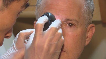 skin cancer screenings sy 01 concatenated 125701 frame 14243 RV Travels To Littleton For Free Skin Cancer Screenings